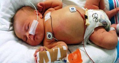 Bebês com COVID-19 tendem sintomas mais leves