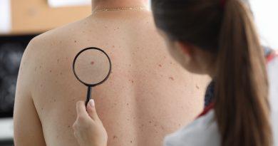 Cientistas analisam tratamento para pacientes com melanoma avançado
