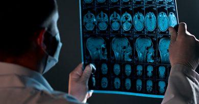 Riscos e benefícios das intervenções para aneurismas intracranianos
