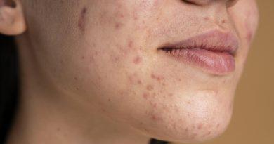 Mulheres com casos de acne podem ter saúde mental prejudicada